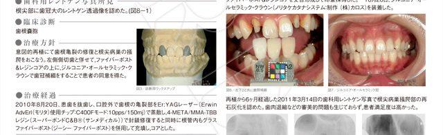 歯科 審美 松江 市